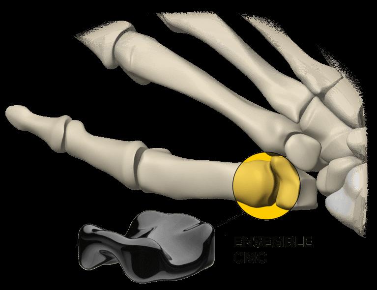 Ensemble CMC implant in hand