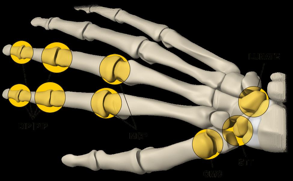 Future products for Ensemble Orthopedics